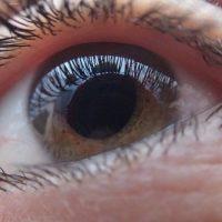 Kép a glaucomáról